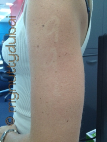 My race number tanned into my arm!